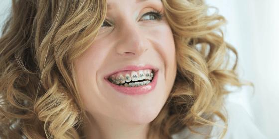 Aparat ortodontyczny – koszty i czas leczenia