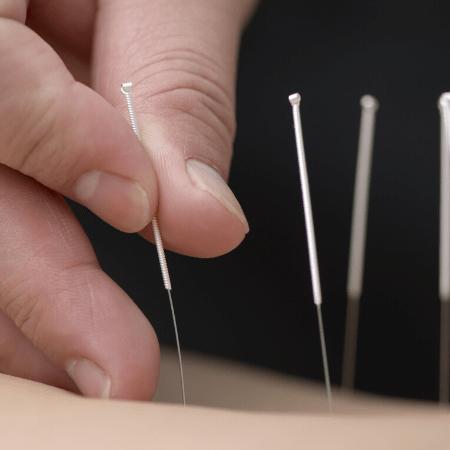 rzucenie-palenia-akupuntura