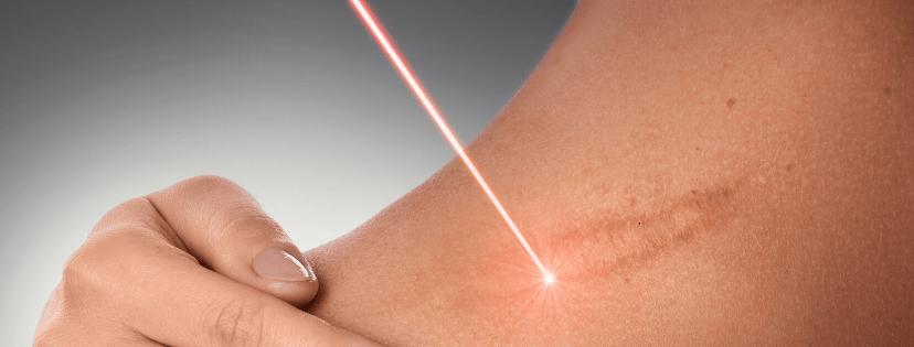 laser-na-blizny